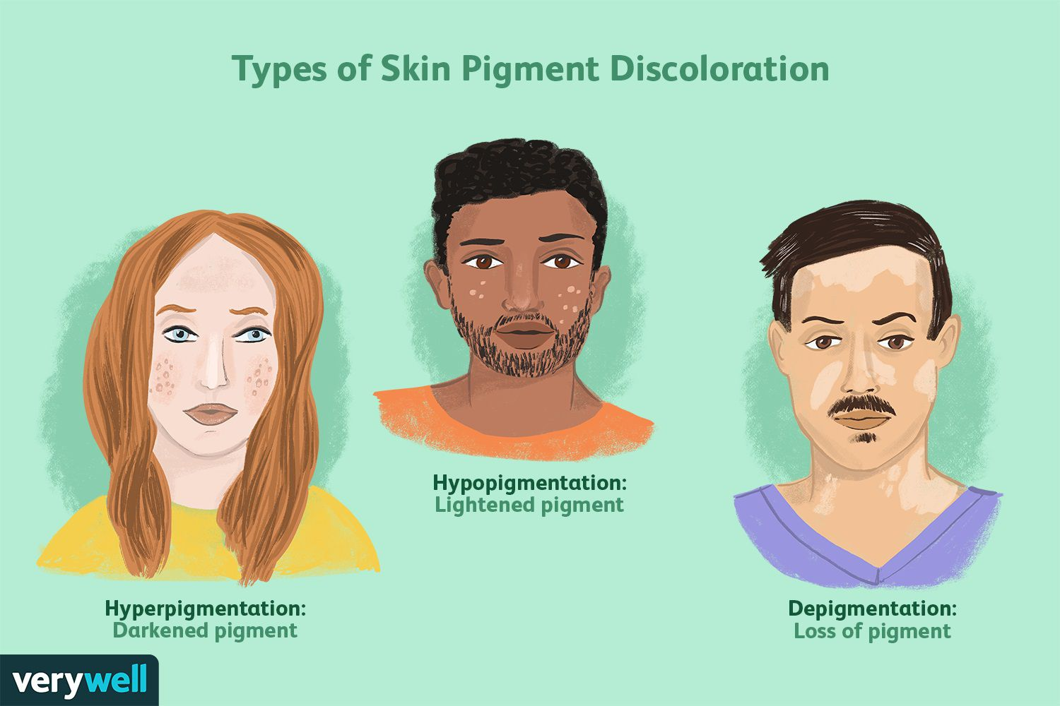 Types of Skin Pigment Discoloration