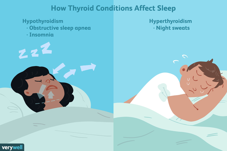 thyroid sleep problems