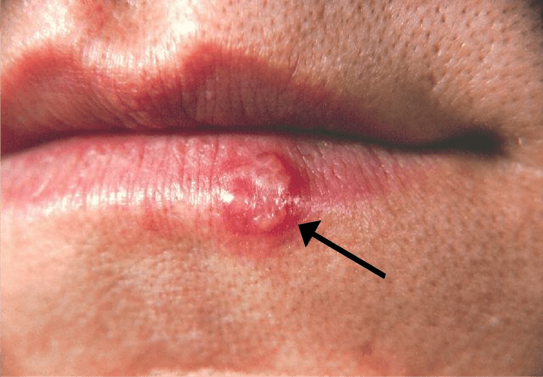 Herpes Simplex Virus (HSV) and HIV