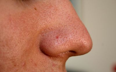 What Is Comedonal Acne and How Can It Be Treated?