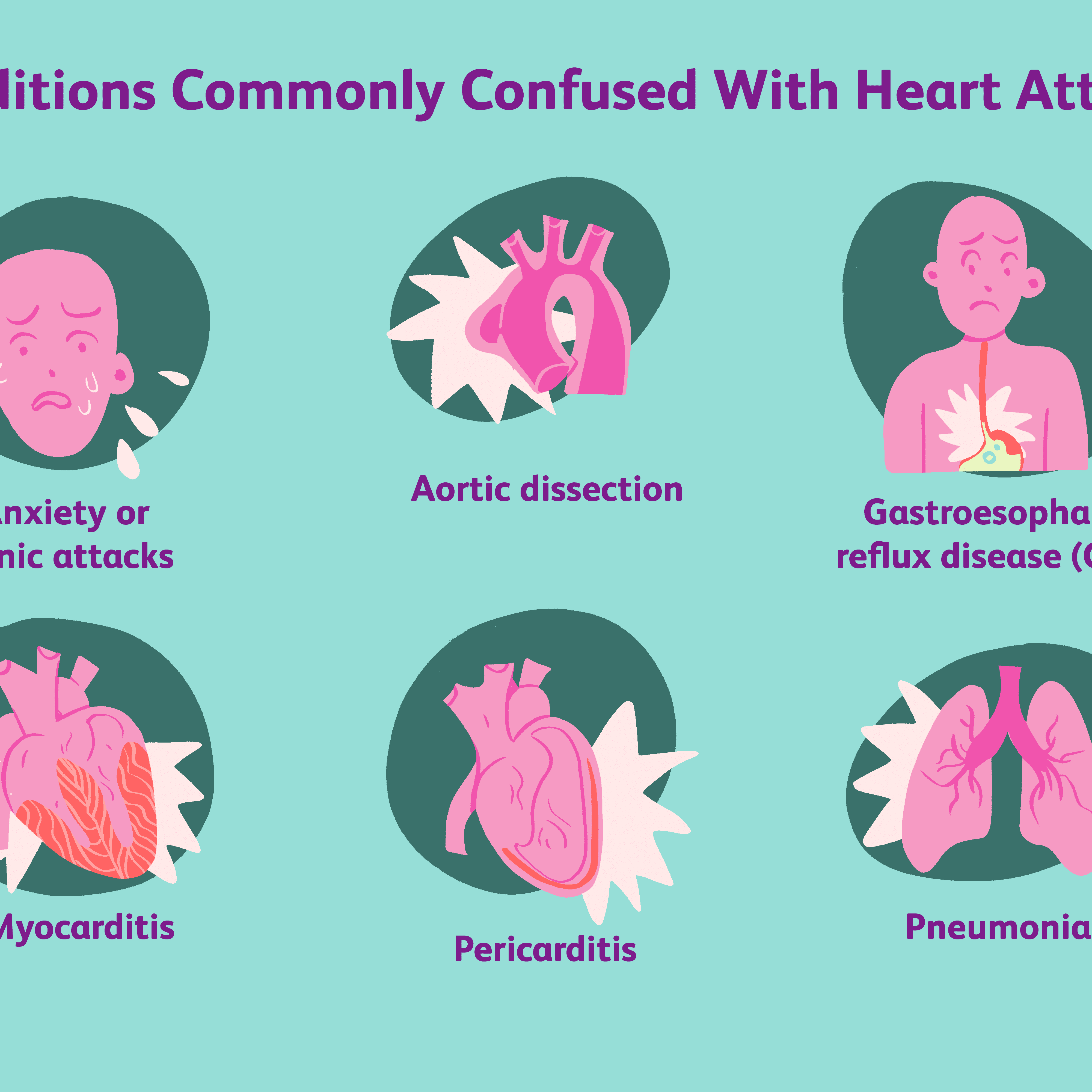 How a Heart Attack Is Diagnosed