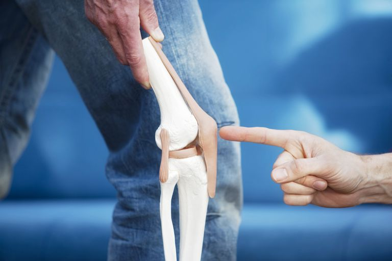 Patellofemoral Knee Replacement Procedure and Results