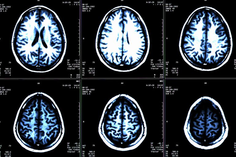 MRI scans of a brain showing multiple sclerosis.