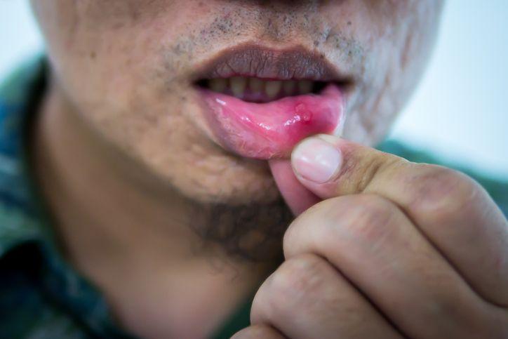 hpv lip swelling