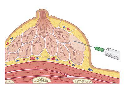 Cross section biomedical illustration of fine needle aspiration of breast lump