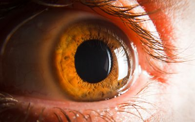 Corneal Ulcers Causes, Symptoms, and Treatment