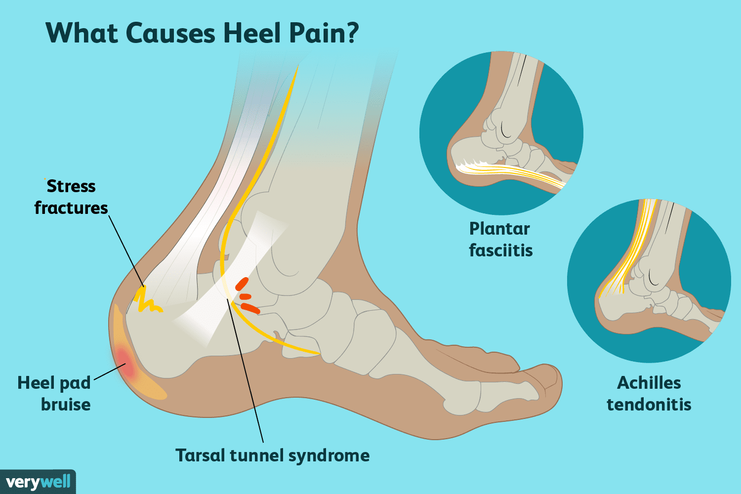Heel Pain: Causes, Treatment, and When to See a Doctor