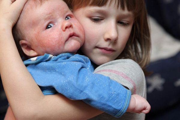 Girl embraces sick brother with eczema