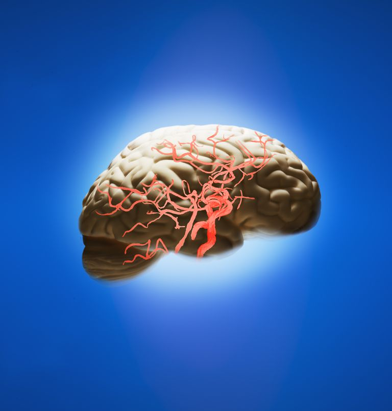 Which Blood Vessels Are Affected By A Stroke
