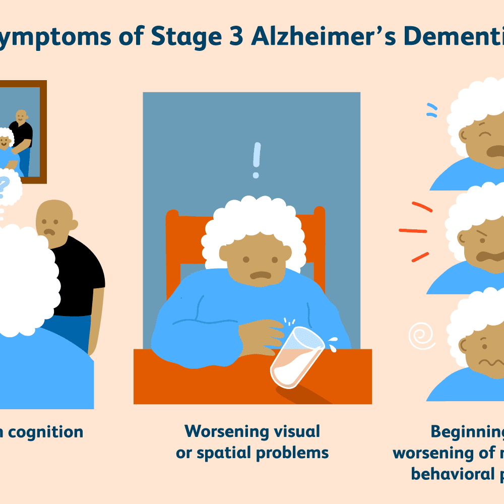 What Are the Stages of Alzheimer's Dementia?