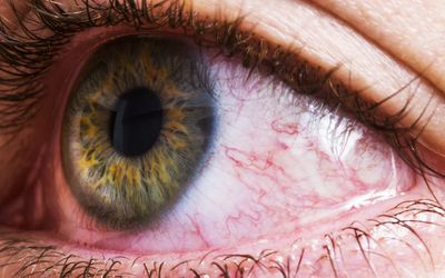 Dry Eye Syndrome: Symptoms, Causes, Diagnosis, and Treatment