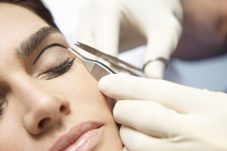 Caring for Your Eyes After Cosmetic Eyelid Surgery