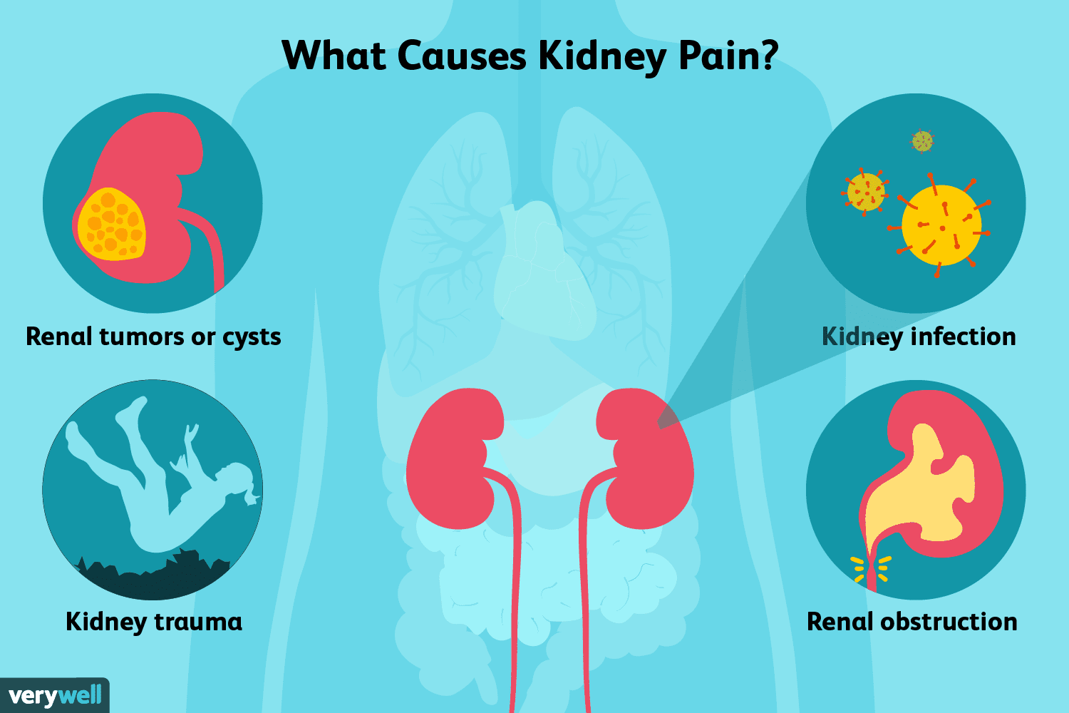 Kidney Pain Causes Treatment And When To See A Doctor