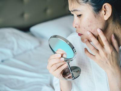 Close up of Asian woman worry about her face when she saw the problem of acne and scar by the mini mirror. - stock photo