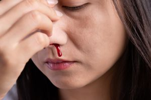 Close-Up Of Woman With Bleeding Nose