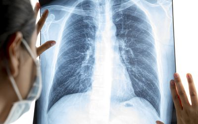 Doctor analyzing lung X-ray film