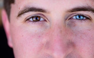 How Genetics Determine Eye Color