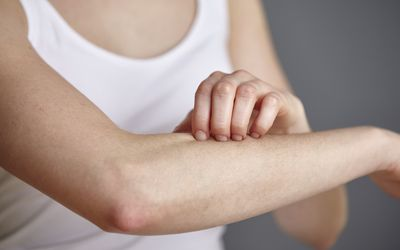 cropped shot of a woman scratching her arm