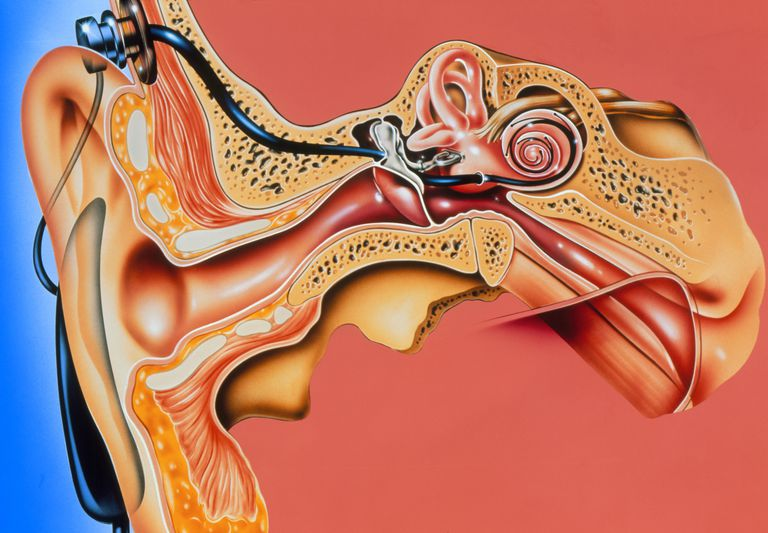 Artwork of cochlear implant in ear