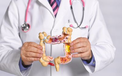 A physician wearing a pink stethoscope and a white coat holding a 3D representation of a colon that demonstrates different diseases and conditions that can occur in that organ.