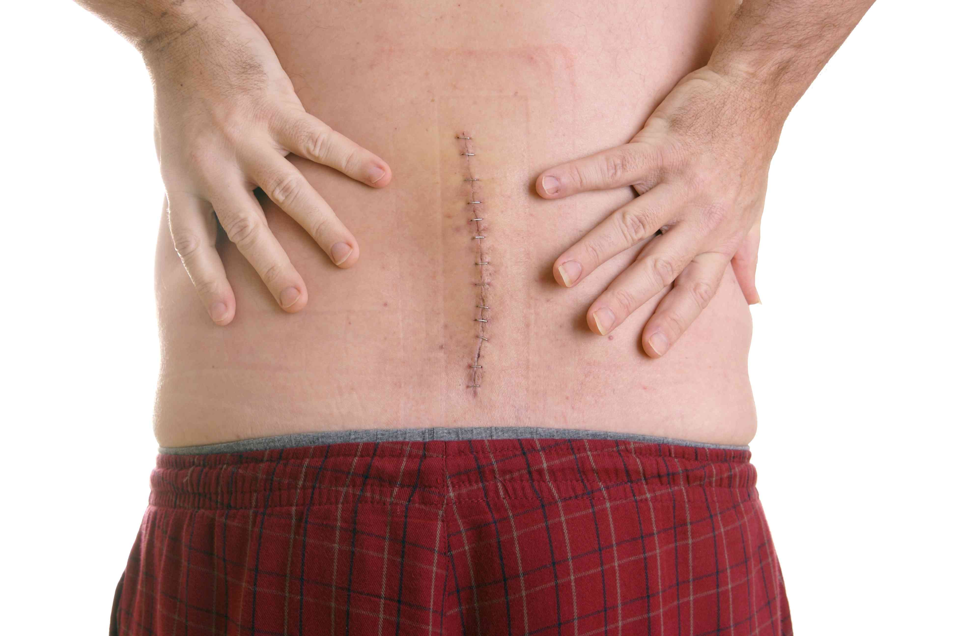 Man in red shorts holding his back on either side of a surgery scar