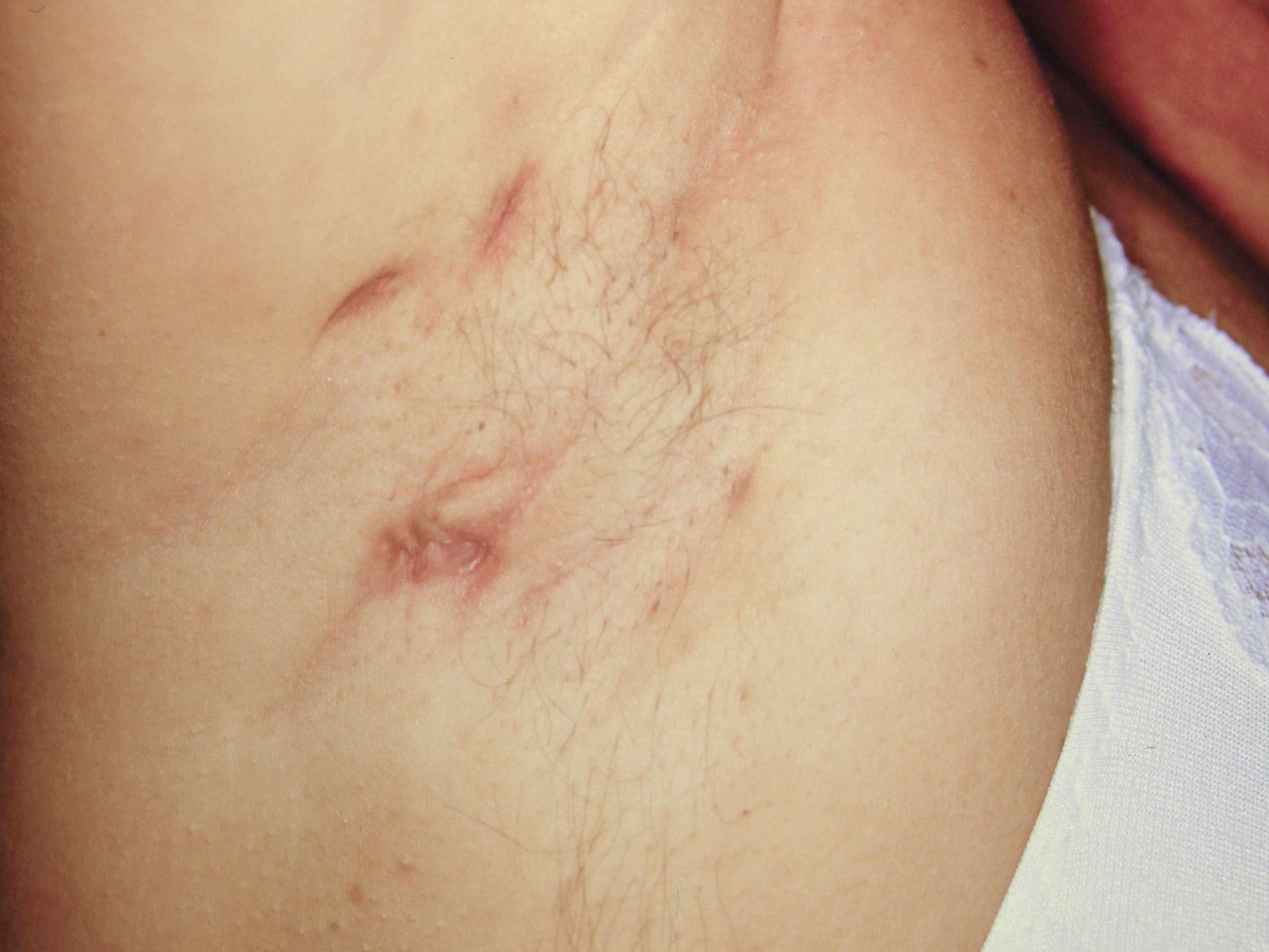 Hidradenitis suppurativa of axilla