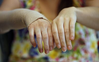 Emily Fennell, UCLA's first hand-transplant recipient