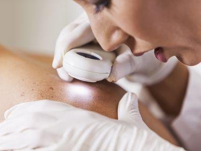 Dermatologist examining patient's skin