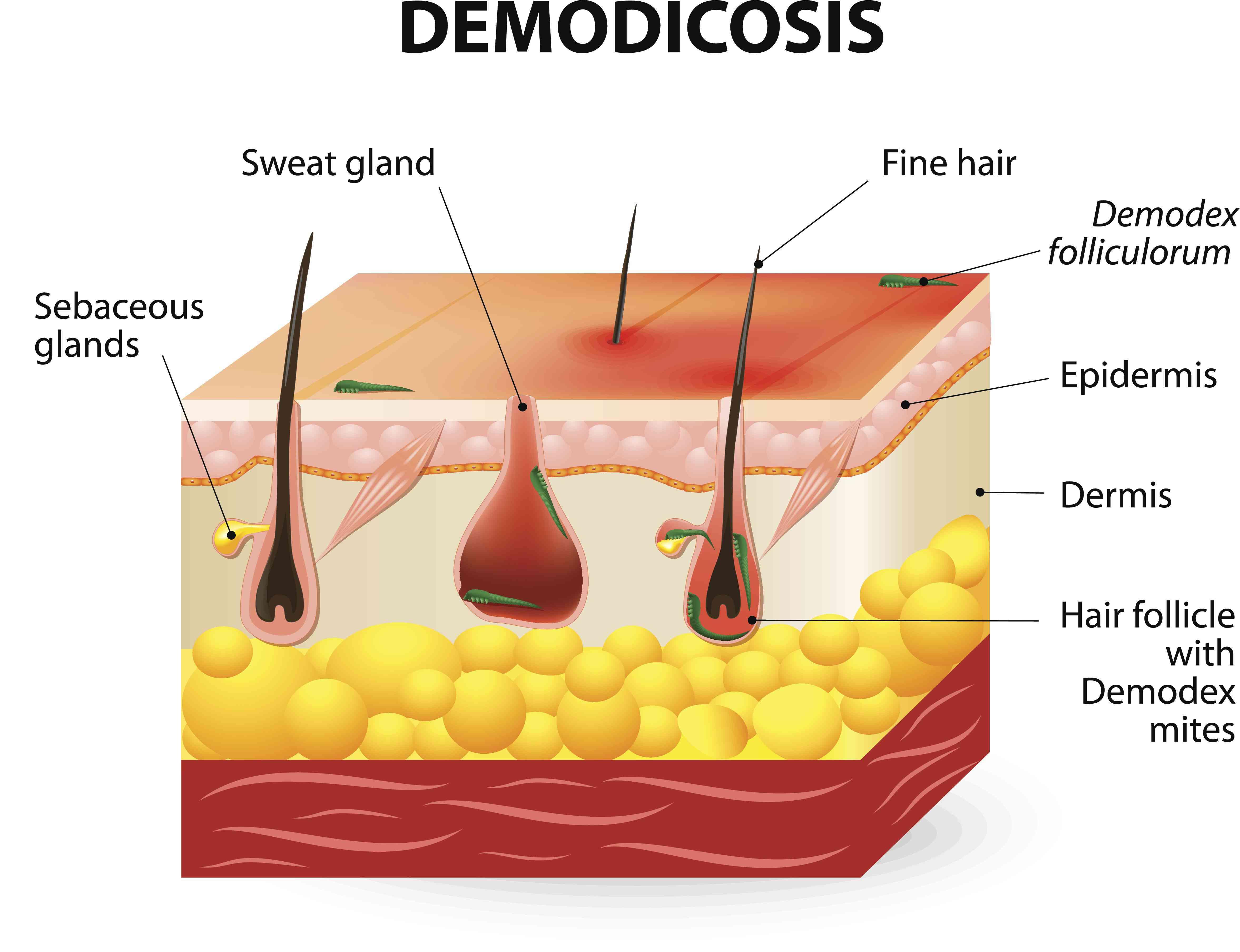 Demodicosis illustration
