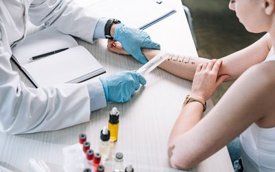 overhead view of allergist holding ruler near marked hand of woman