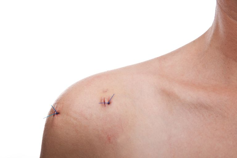 Portrait of woman's shoulder with two stitches
