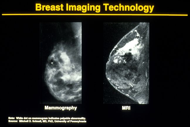 mammogram pictures of normal and abnormal images