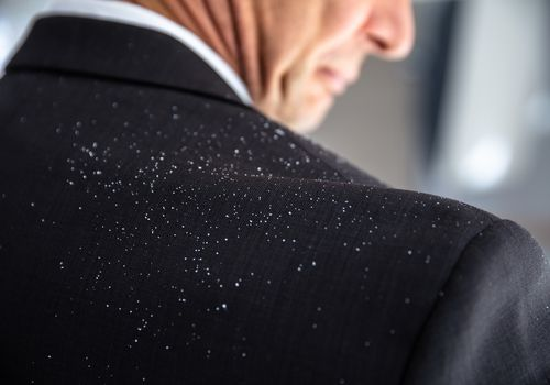 Dandruff Fallen On Businessperson's Shoulder