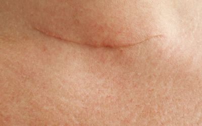 Scar from thyroid removal surgery