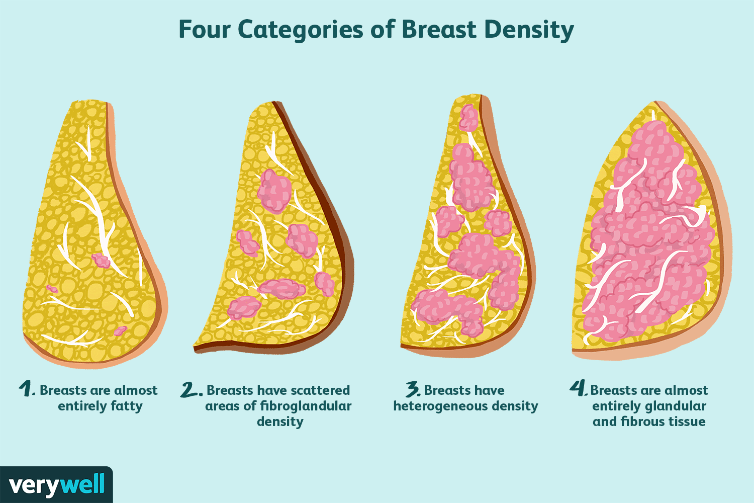 Scientists Learn What Women Know — and Don't Know — About Breast Density and Cancer Risk
