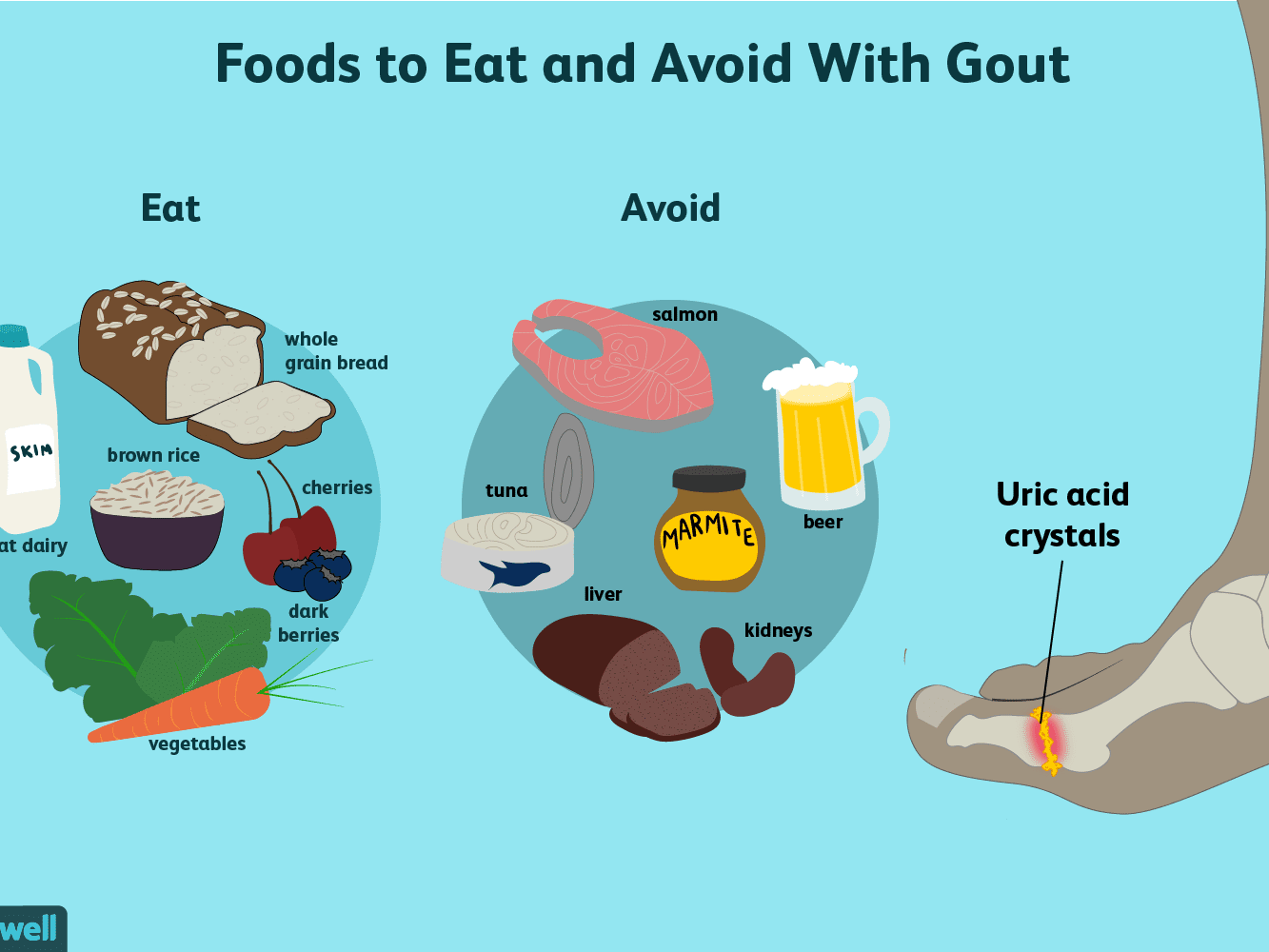 what foods can i eat oon gout diet