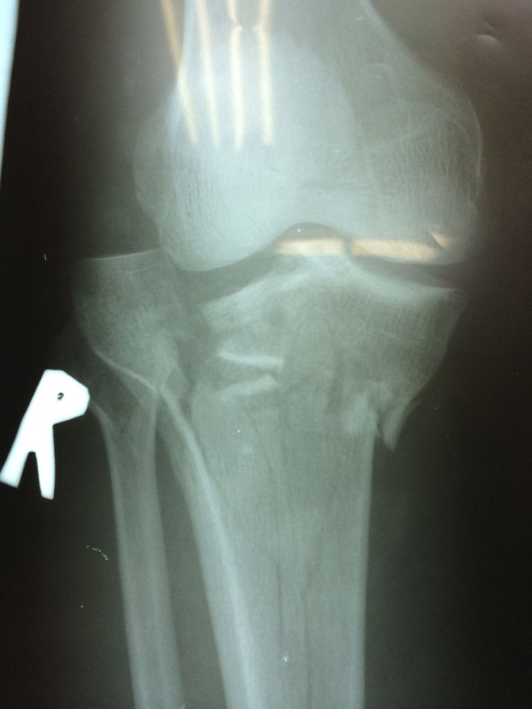 intraarticular fracture x-ray