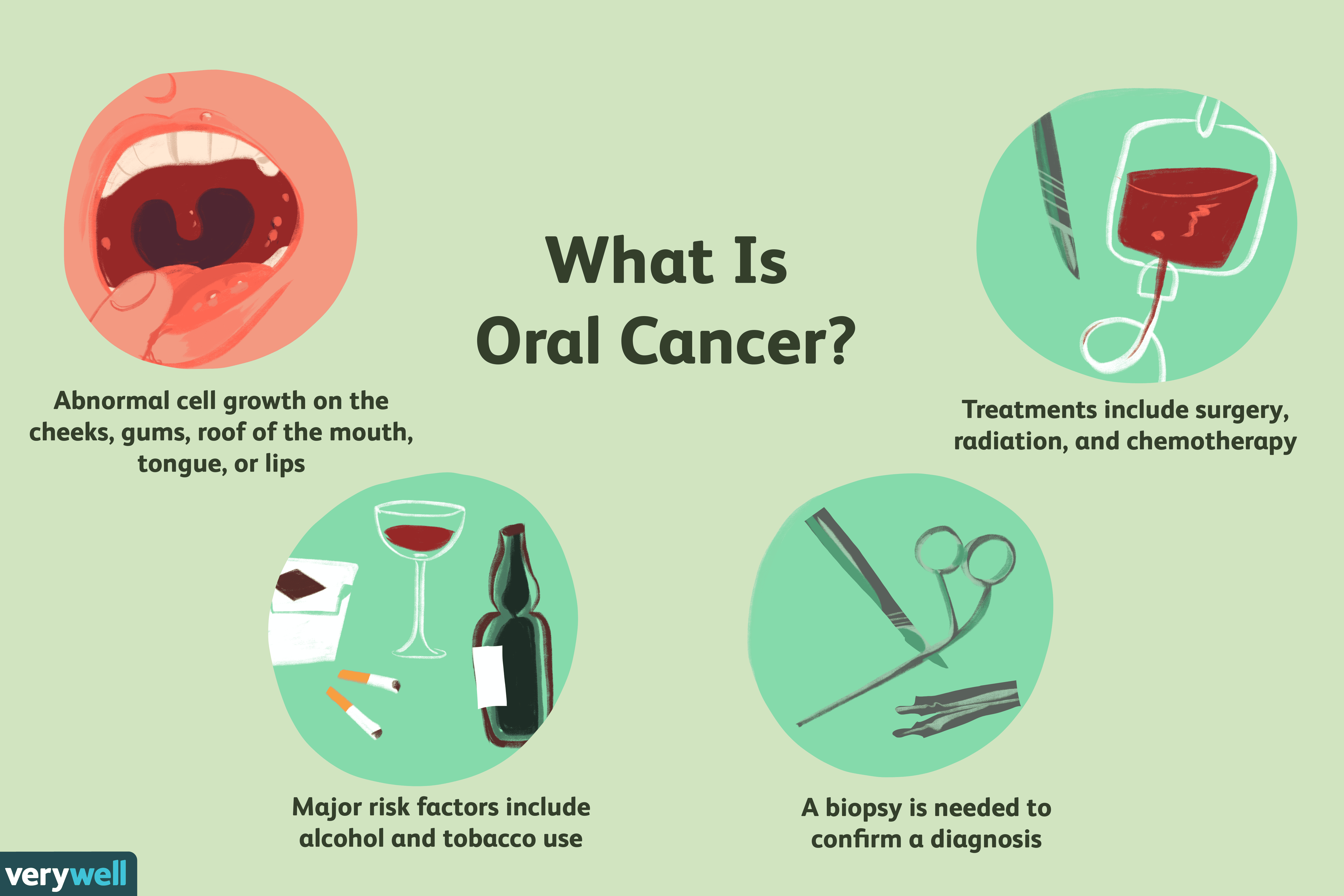 Oral Cancer: Symptoms, Cause, Diagnosis, and Treatment
