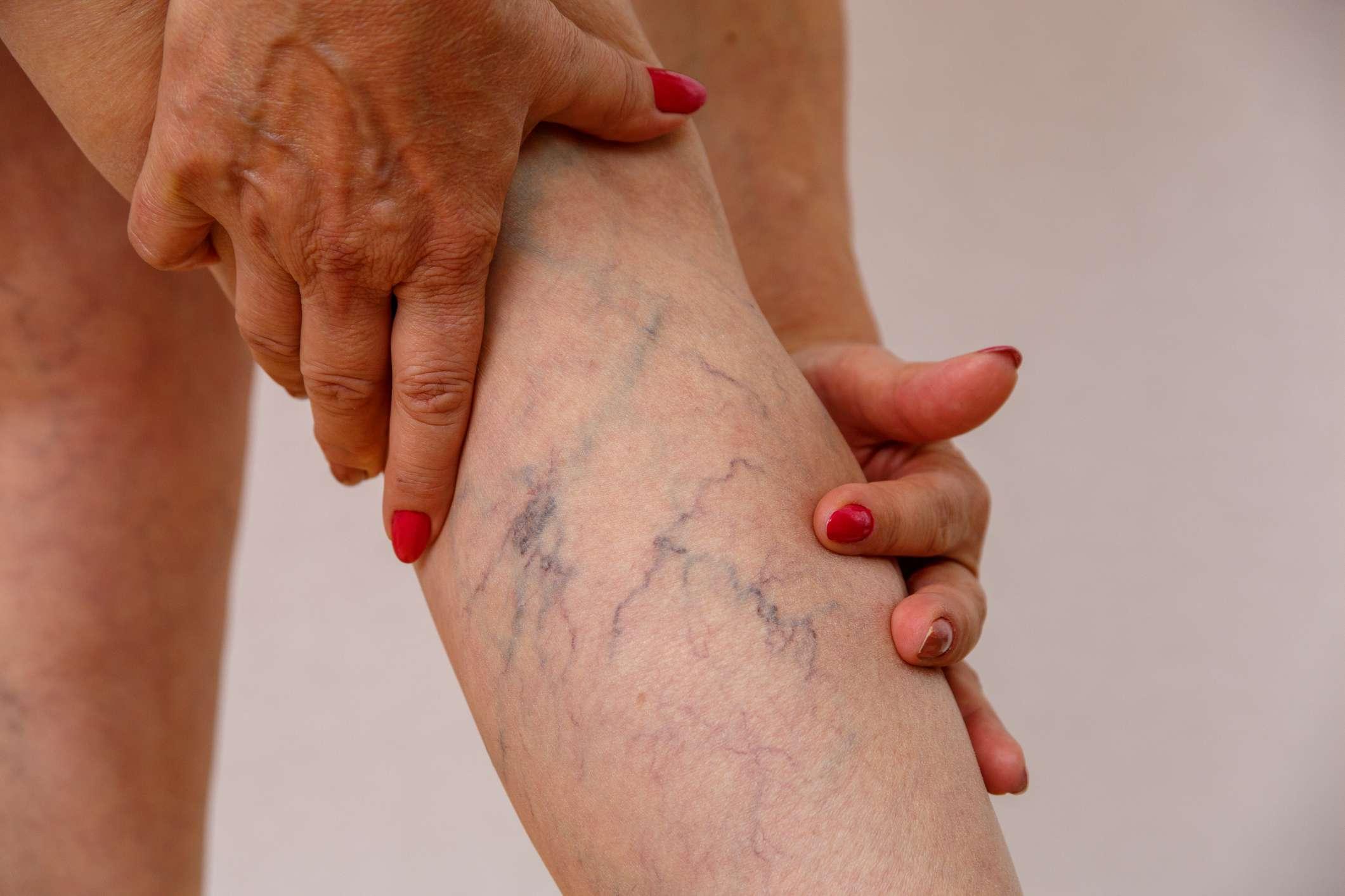 elderly woman shows varicose