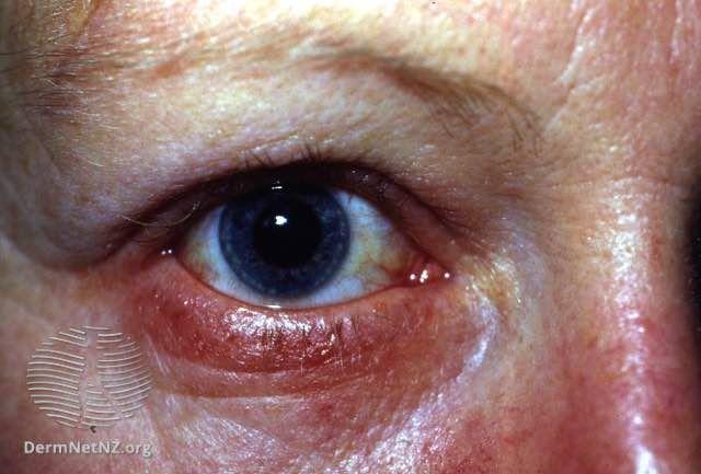 blephartis