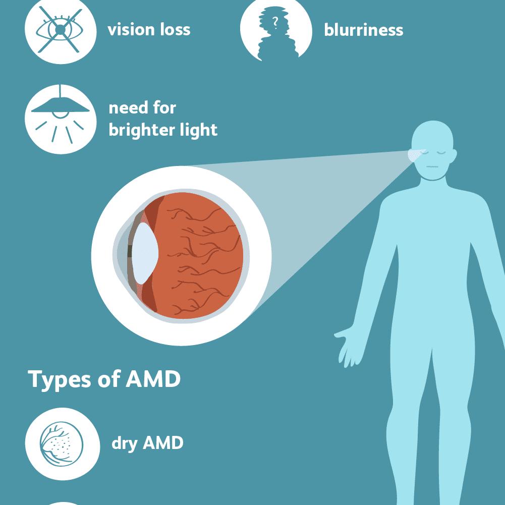 macular degeneration (AMD) symptoms