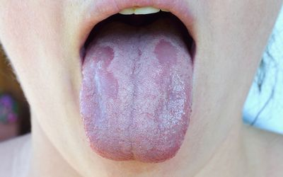 Oral Candidiasis or Oral thrush (Candida albicans), yeast infection on the human tongue close up