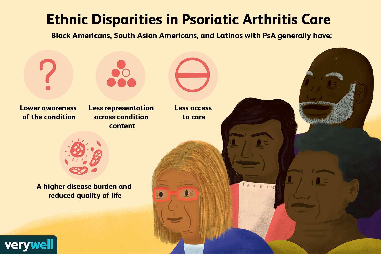 Ethnic Disparities in Psoriatic Arthritis Care