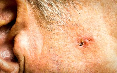 Basal Cell Carcinoma on the face of older man before surgery