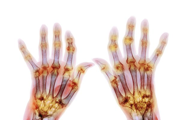 X-ray of hands affected by rheumatoid arthritis