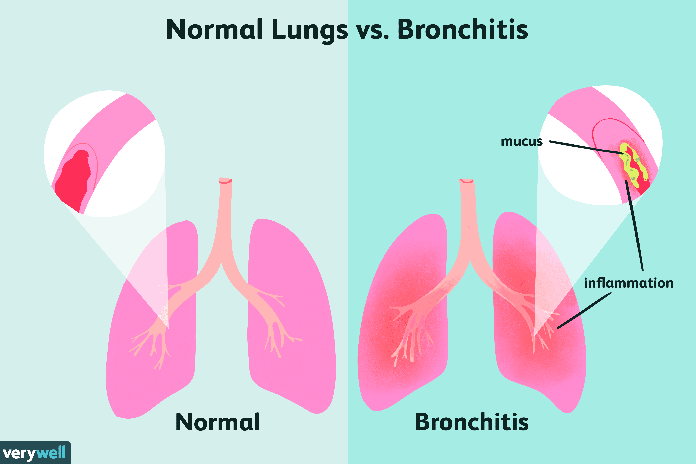 Normal Lungs vs. Bronchitis