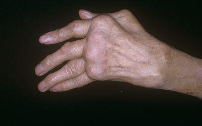 Arthritic hand indicative of polyarthritis