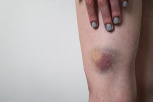 Closeup of woman with bruised leg