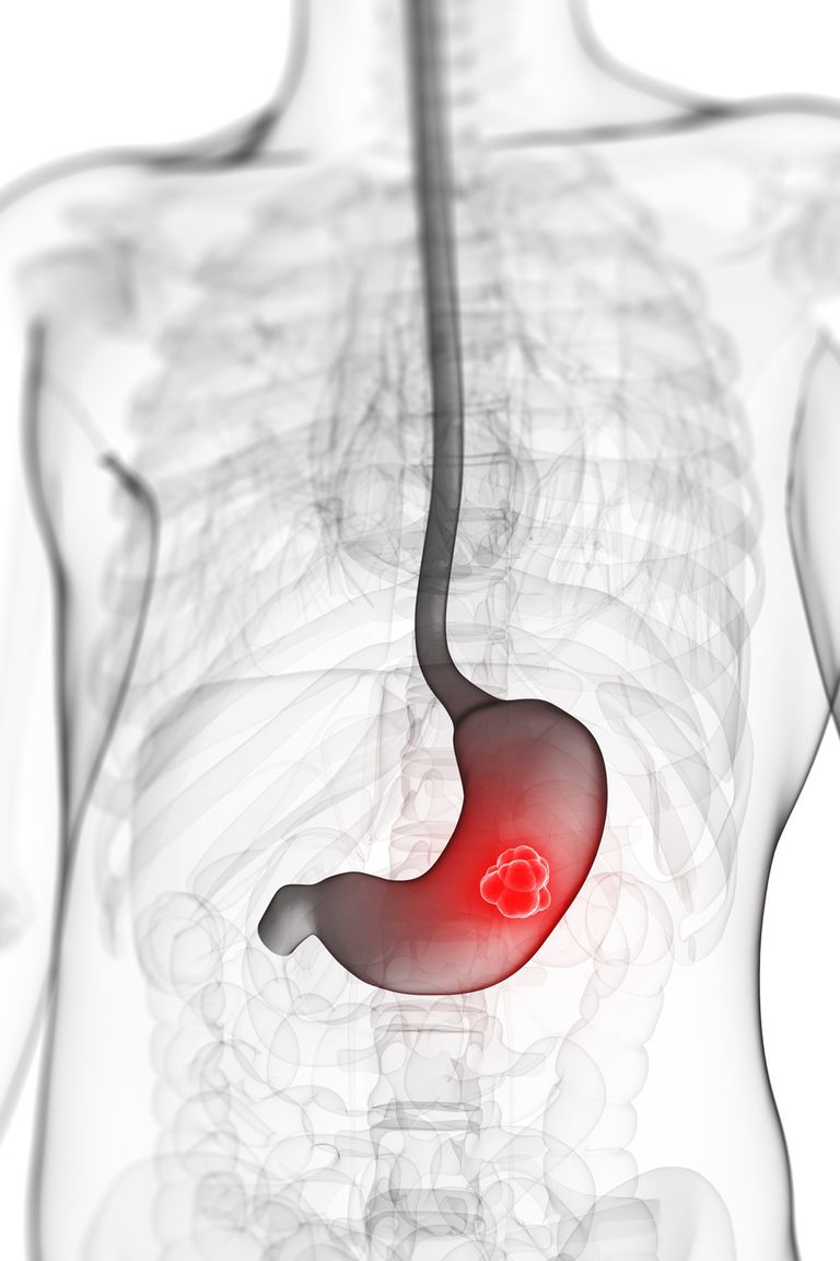 A diagram showing stomach cancer.