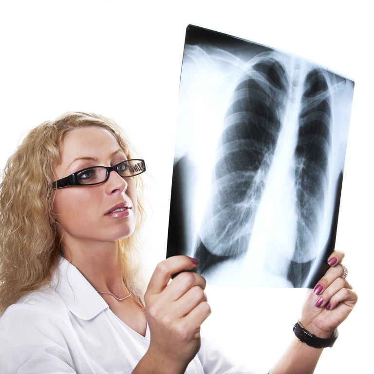 doctor looking at a chest x-ray